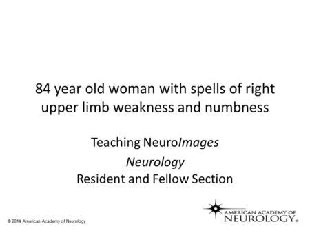 84 year old woman with spells of right upper limb weakness and numbness Teaching NeuroImages Neurology Resident and Fellow Section © 2014 American Academy.