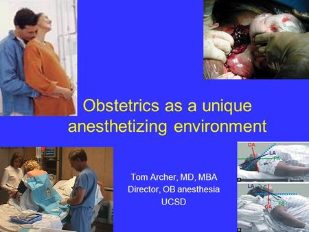 Obstetrics as a unique anesthetizing environment Tom Archer, MD, MBA Director, OB anesthesia UCSD.