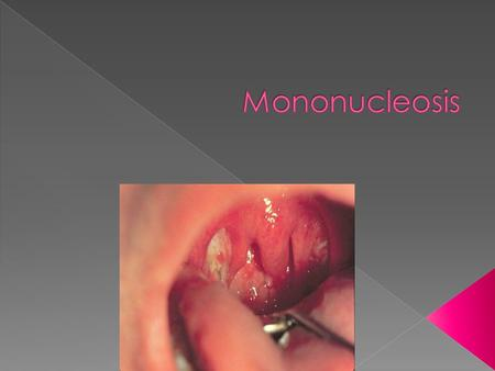  It is also known as mono or the kissing disease.  It is a viral infection that can leave you feeling tired or weak for weeks or even months.  It will.