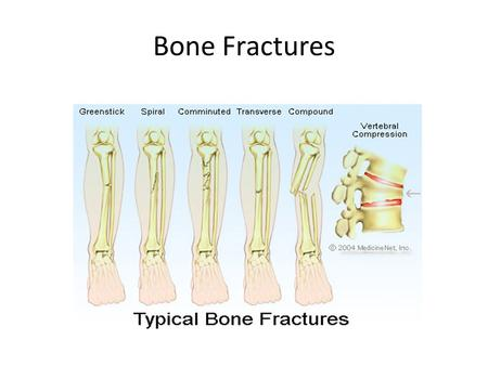 Bone Fractures. Depressed Fracture : a fracture especially of the skull in which the fragment is depressed below the normal surface.