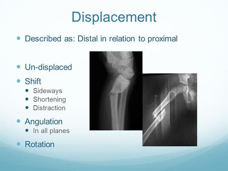 Displacement Described as: Distal in relation to proximal Un-displaced Shift Sideways Shortening Distraction Angulation In all planes Rotation.