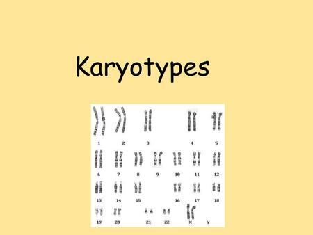 Karyotypes. I. What is a Karyotype? Karyotype = a test to identify and evaluate the size, shape, and number of chromosomes in a sample of body cells.