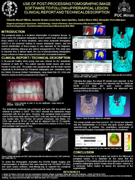 REFERENCES INTRODUCTION The periapical lesion is a localized inflammation of periapical tissues. In some cases the periapical radiography doesn't permit.