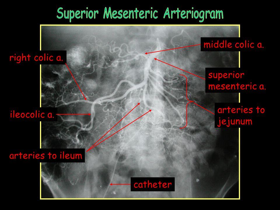 catheter inferior mesenteric a.left colic a. superior rectal a.