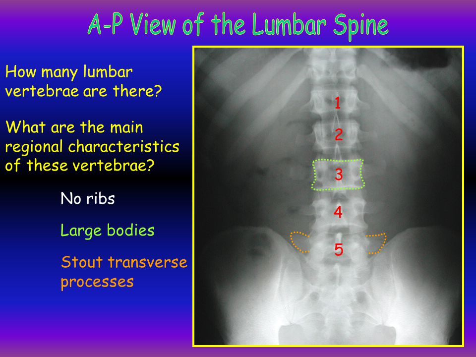 12th rib 12th thoracic vertebra spine of L5 transverse process of L2 pedicles of L3 superior articular process of L2 body of L1 inferior articular process of L4 lumbosacral joint