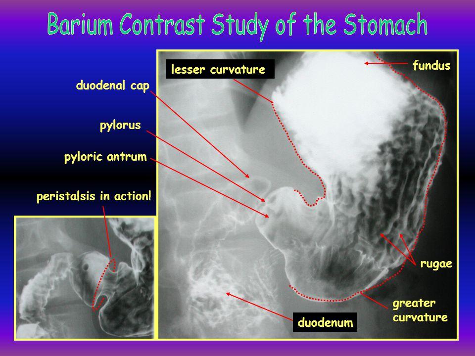 gallbladder duodenum gas bubble in stomach fundus jejunum rugae greater curvature body