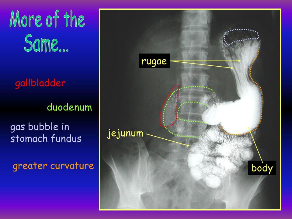 A barium enema ascending colon descending colon transverse colon sigmoid colon rectum splenic flexure hepatic flexure haustra