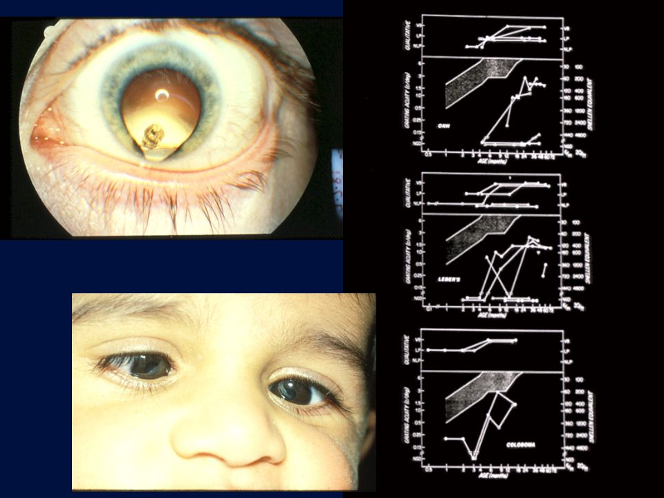 Delayed Visual Maturation Type 1 - isolated abnormality –ANormal perinatal period –BPerinatal problems Type 2 - obvious & permanant neurodevelopmental delay Type 3 - nystagmus (albinism) Type 4 - severe developmental, structural ocular abnormalities (not albinism)