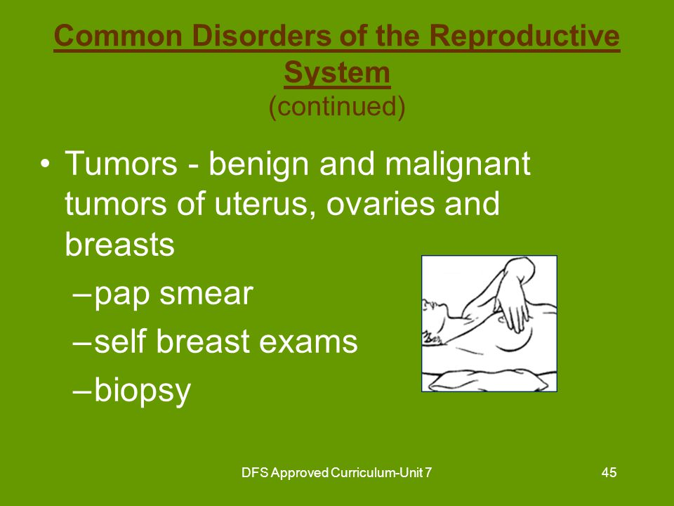 DFS Approved Curriculum-Unit 746 Common Disorders of the Reproductive System (continued) Sexually transmitted diseases –gonorrhea –syphilis –herpes –AIDS Prostatic hypertrophy - enlargement of prostate gland Vaginitis