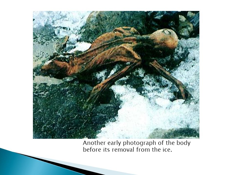  Lying on its front and frozen in ice below the torso, it was crudely removed from the glacier by the Austrian authorities using a small jackhammer (which punctured the hip of the body) and ice-axes using non- archaeological methods.