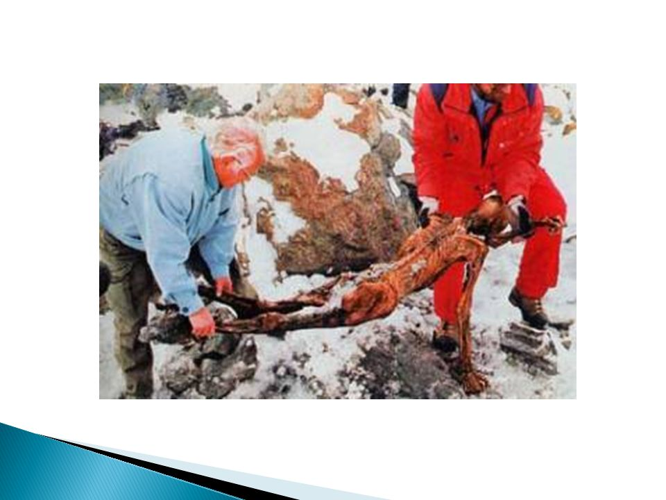 Damage caused by small jack hammer to Otzi's hip when authorities attempted to remove his body from the ice.