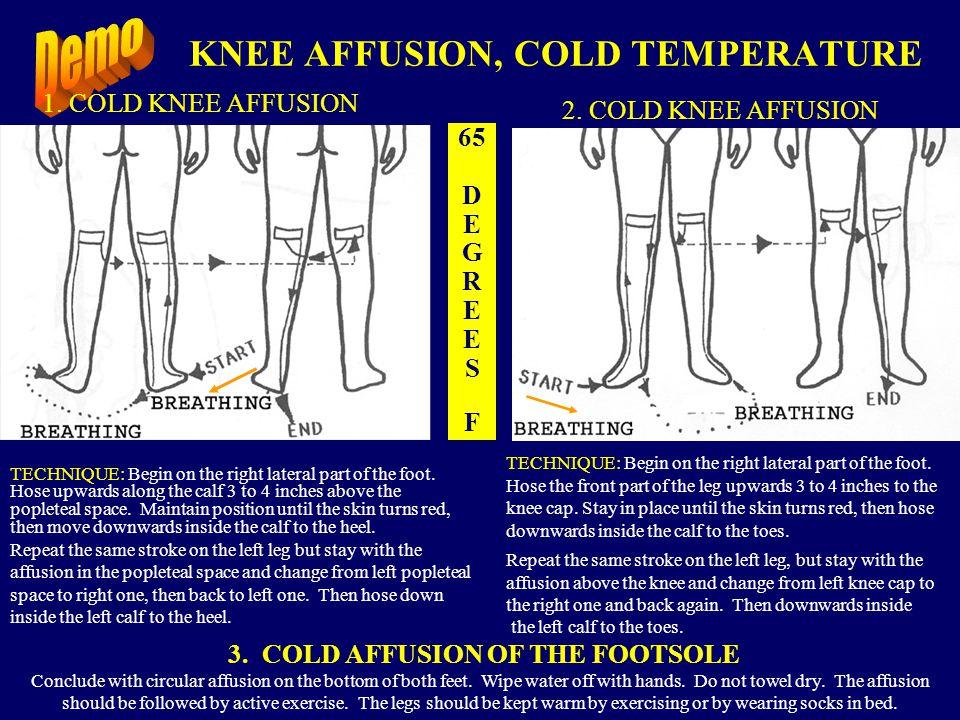 COLD LEG AFFUSION - TECHNIQUE: BACKSIDE65 Degrees F.