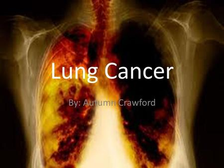 Lung Cancer By: Autumn Crawford. Symptoms Many people dismiss or adapt to a chronic cough, attributing it to something else. It is just allergies, a cough.