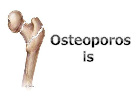 WHAT IS Osteoporosis ? Osteoporosis is a common disease in the whole world, the danger in that disease is that you can't figure out if you have it early,