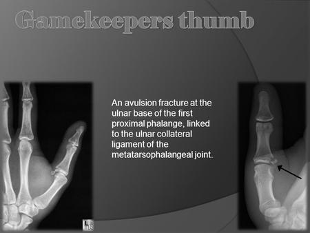 An avulsion fracture at the ulnar base of the first proximal phalange, linked to the ulnar collateral ligament of the metatarsophalangeal joint.
