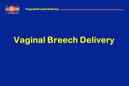 Vaginal Breech Delivery International Vaginal Breech Delivery.