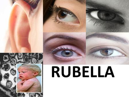 RUBELLA. WHAT IS RUBELLA A rash (small, fine pink spots) that starts on the face and spreads to the torso, then to the arms and legs with low fever. Rubella.