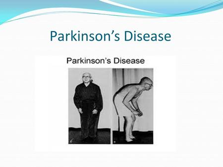 Parkinson's Disease. Definition Parkinson's disease (PD) is an idiopathic, slowly progressive, neurodegenerative disorder whereby two or more of the following.