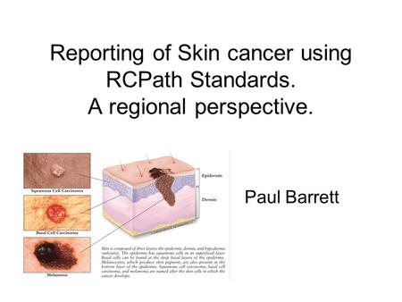 Reporting of Skin cancer using RCPath Standards. A regional perspective. Paul Barrett.