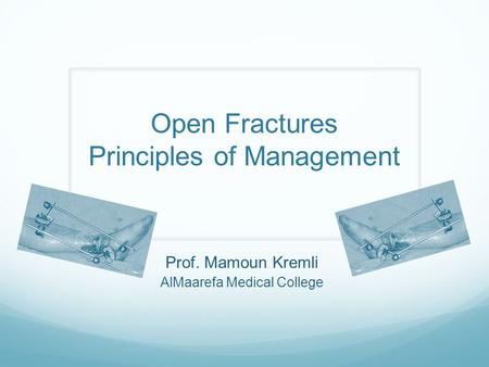 Prof. Mamoun Kremli AlMaarefa Medical College Open Fractures Principles of Management.