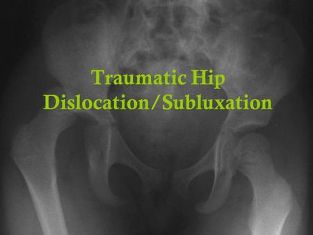 Traumatic Hip Dislocation/Subluxation. When the femur moves out of its normal position in the socket Two general categories of hip dislocations exist,