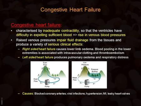BIMM118 Congestive Heart Failure Congestive heart failure: characterised by inadequate contractility, so that the ventricles have difficulty in expelling.