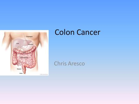 Colon Cancer Chris Aresco Statistics 51,848 people in the United States died of colon cancer in 2009 (26,806 men and 25,042 women) Colon cancer is not.