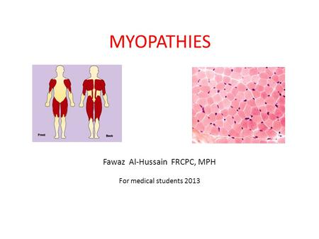 MYOPATHIES Fawaz Al-Hussain FRCPC, MPH For medical students 2013.