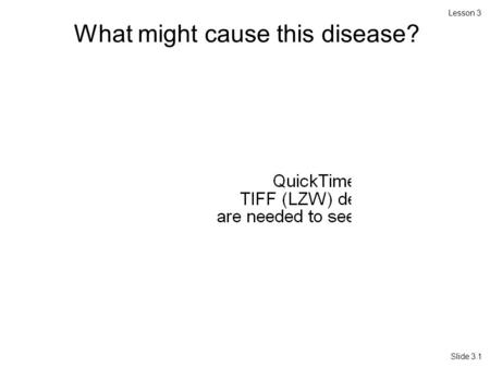 Lesson 3 Slide 3.1 What might cause this disease?.