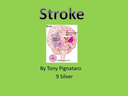 By Tony Pignataro 9 Silver. Two types of stroke ischaemic and haemorrhagic are the two types of stroke. A stroke is the sudden loss of function to the.