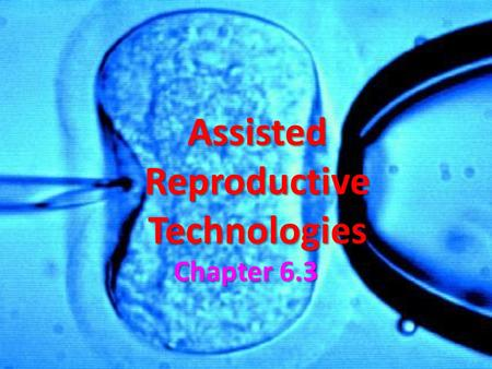 Assisted Reproductive Technologies Chapter 6.3. Assisted Reproductive Technologies Many couples can be infertile due to complications related to the reproductive.