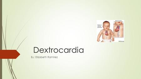 Dextrocardia By: Elizabeth Ramirez. What are genetic disorders?  Genetic disorders are problems that happen in the DNA. A part of the DNA was not reproduce.