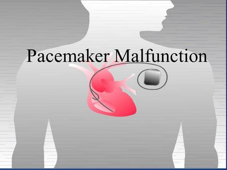 Pacemaker Malfunction. ECG Signs of Pacemaker Malfunction Failure to output Failure to capture Undersensing Inappropriate pacemaker rate true malfunctions.