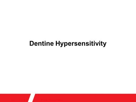 14/10/2015 22:23 © Author / Presentation ReferenceSlide 1 Dentine Hypersensitivity.