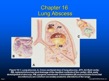 Copyright © 2006 by Mosby, Inc. Slide 1 Chapter 16 Lung Abscess Figure 16-1. Lung abscess. A, Cross-sectional view of lung abscess. AFC, Air-fluid cavity;