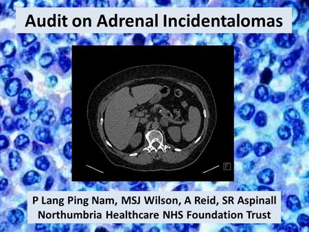 Audit on Adrenal Incidentalomas P Lang Ping Nam, MSJ Wilson, A Reid, SR Aspinall Northumbria Healthcare NHS Foundation Trust.