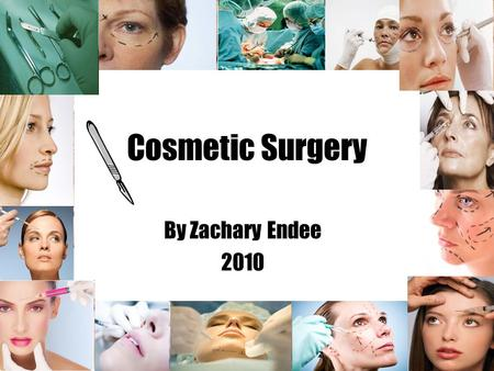 Cosmetic Surgery By Zachary Endee 2010. Colleges I May Attend I would like to attend the University of North Carolina Wilmington because of it's high.