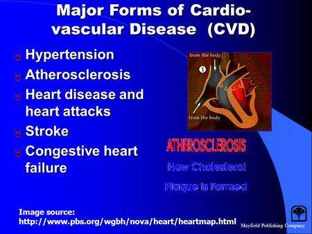 Mayfield Publishing Company Major Forms of Cardio- vascular Disease (CVD)  Hypertension  Atherosclerosis  Heart disease and heart attacks  Stroke.