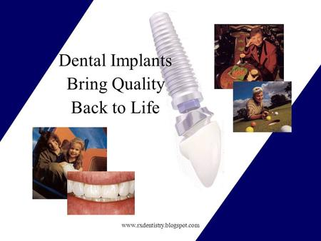 Www.rxdentistry.blogspot.com Dental Implants Bring Quality Back to Life.