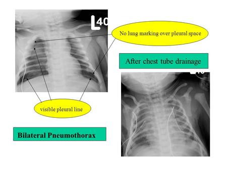 Bilateral Pneumothorax After chest tube drainage visible pleural line No lung marking over pleural space.