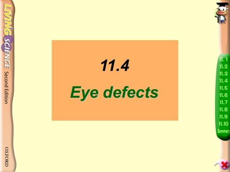 Eye defects 11.4 Eye defects How many people in the class are wearing glasses? Do you know the reasons?