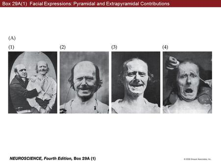 Box 29A(1) Facial Expressions: Pyramidal and Extrapyramidal Contributions.