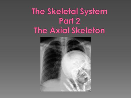  Forms the longitudinal part of the body  Divided into three parts › Skull › Vertebral column › Bony thorax.