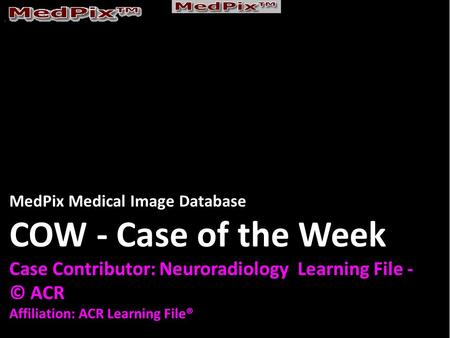 MedPix Medical Image Database COW - Case of the Week Case Contributor: Neuroradiology Learning File - © ACR Affiliation: ACR Learning File®