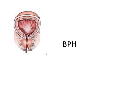 BPH. Etiology Most common benign tumor in men (Age related) Multifactorial and endocrine controlled BPH is under endocrine control (+) correlation between.