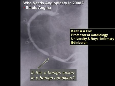 RITA-3 Is this a benign lesion in a benign condition? Who Needs Angioplasty in 2008? Stable Angina Stable Angina Keith A A Fox Professor of Cardiology.