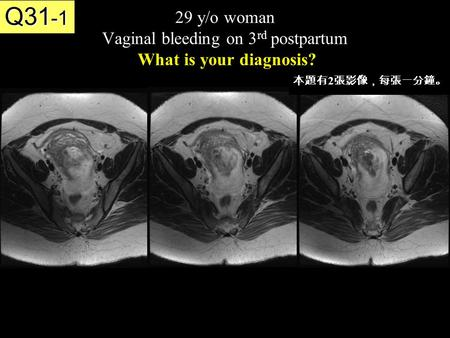 29 y/o woman Vaginal bleeding on 3 rd postpartum What is your diagnosis? Q31 -1 本題有 2 張影像,每張一分鐘。