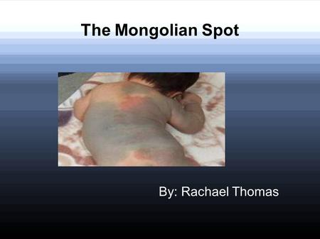 The Mongolian Spot By: Rachael Thomas. What it is ? The Mongolian spot is a development condition exclusively involving the skin. The blue color is caused.