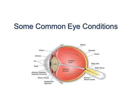Some Common Eye Conditions. Blepharitis BlepharitisAnterior Posterior.