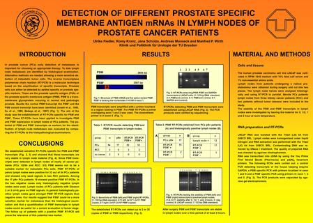 DETECTION OF DIFFERENT PROSTATE SPECIFIC MEMBRANE ANTIGEN mRNAs IN LYMPH NODES OF PROSTATE CANCER PATIENTS Ulrike Fiedler, Romy Kranz, Jana Scholze, Andreas.